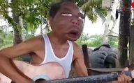 مرد فیلیپینی زامبی شد! / چهره ای باورنکردنی +فیلم