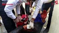 آخرین وضعیت مرد مینابی که گراز به او حمله کرده بود + فیلم