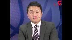 خونریزی گزارشگر فوتبال حین برنامه زنده+فیلم